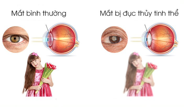 Đục thủy tinh thể là một dạng bệnh cườm mắt có thể gây giảm thị lực